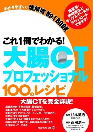 RadFan これ1冊でわかる! 大腸CTプロフェッショナル 100のレシピ